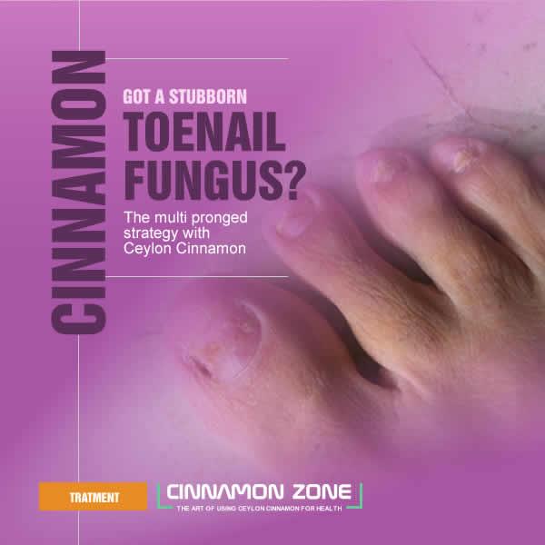 Toe Nail Fungus Cure with Cinnamon | Cinnamon Zone